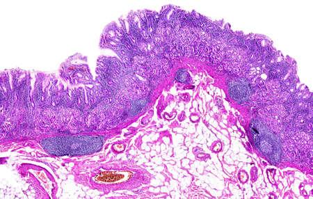 pathologist: Chronic gastritis of a human, highly detailed segment of panorama. Stock Photo