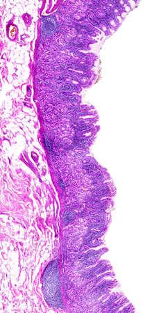 gastritis: Chronic gastritis of a human, highly detailed segment of panorama. Stock Photo
