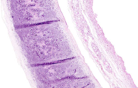 Histology of human tissue, show tracheitis and squamous metaplasia of bronchial mucosa as seen under the microscope Stok Fotoğraf