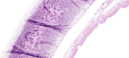 Histology of human tissue, show tracheitis as seen under the microscope Stok Fotoğraf