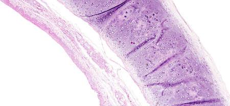 인간 조직의 조직학은 현미경으로 볼 때 기관지 점막의 편평 상피화를 나타낸다.