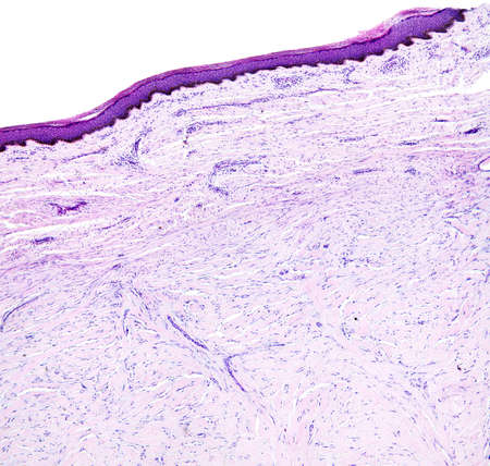 Histology of human tissue, show skin as seen under the microscope