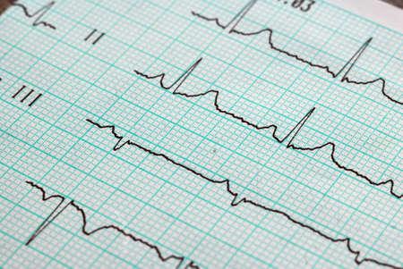 cardiogram: graph of cardiogram