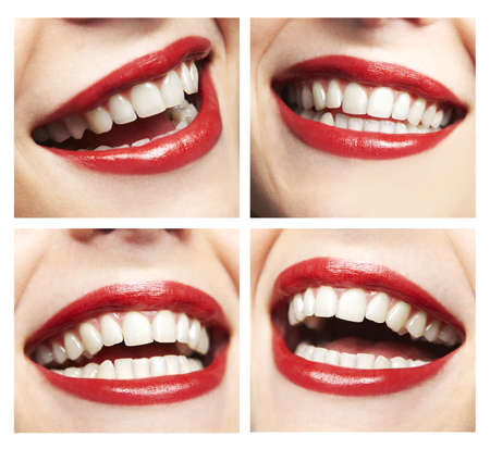 dentition: Collage, made of many different smiles Stock Photo