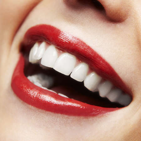 mouth close up: Woman smile  Teeth whitening  Dental care