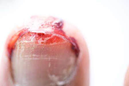 hemorragias: El sangrado de u�as de los pies heridos en el fondo blanco Foto de archivo