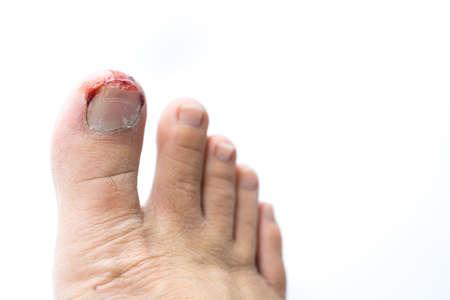 hemorragias: El sangrado de uñas de los pies heridos en el fondo blanco Foto de archivo