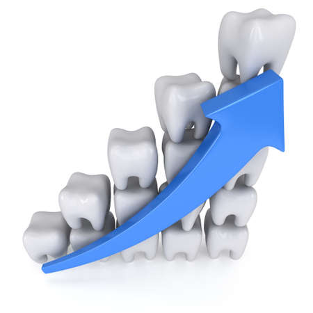 3d Zähne Balkendiagramm mit blauen Pfeil isoliert auf weißem Hintergrund Lizenzfreie Bilder