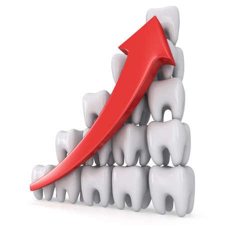 3d Zähne Balkendiagramm mit roten Pfeil auf weißem Hintergrund. Render. Zahnmedizin Gesundheit wachsen Diagramm-Geschäftsstatistik Konzept.