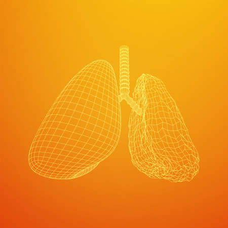 Healthy and sick lung with trachea bronchi internal organ human. Pulmonology medicine science technology concept. Wireframe low poly mesh vector illustration