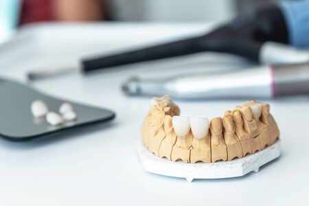 manufacture of veneers, dental implants and crowns in the dental laboratory. Maxillary denture with veneers in the dental office.
