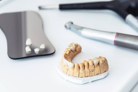 Artificial jaw with dental veneers and crowns in the dental laboratory. Medical instrument in the dentists office. Zdjęcie Seryjne
