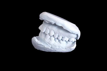 overbite: Dental examining, plaster dents model isolated on black background Stock Photo