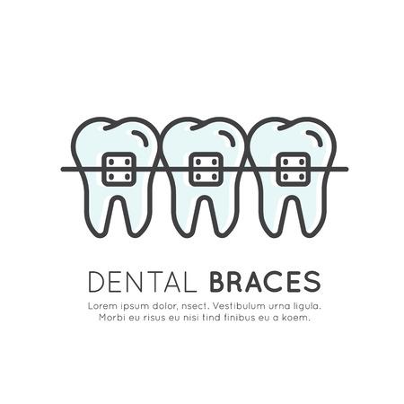 分離ベクトル イラスト ロゴ バッジまたは美学、矯正歯科歯ブレース インストール プロセスです。