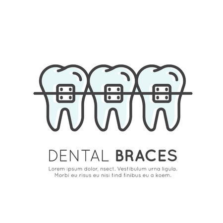 fillings: Isolated Vector Style Illustration Logo Badge or Dental Tooth Braces Installation Process, Aesthetics, Orthodontist