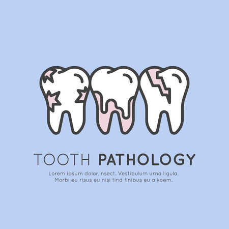 Isolated Vector Style Illustration Logo Badge or Dental Tooth Pathology and Decay, Dental Caries, Tooth Crack and Calculus