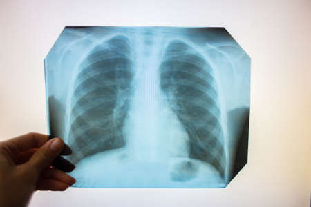 Chest x-ray into the lumen on a white screen. Ribs and lungs in x-ray