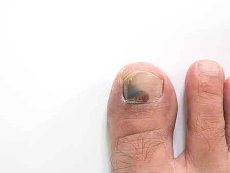 bruise: Toe nail with bruise isolate on white background with copy space Stock Photo
