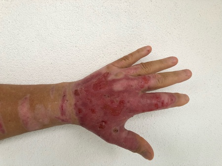 Burned or burnt mans hand.Heavy skin damage