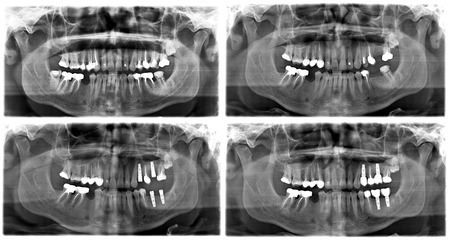 Panoramic l X-Ray of human teeth.Process of Dental Implant Treatment in different stages Stockfoto