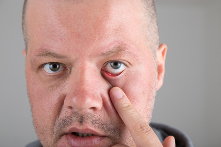 Male patient with  stye in the eye at the lower eyelid. Hordeolum or Chalazion