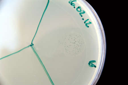 Image illustrates bactephages activity  Little spots on the right are area of bacteria lysis caused by phages  This places are called phage plaques  This is one of the first steps in bactephage therapy  Stock Photo - 15596318