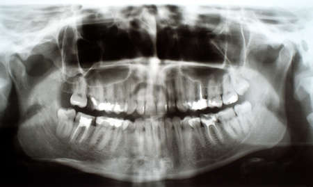 root canal: Panoramic, full mouth dental xray  X-ray of human teeth  Root canal treatment photo  Stock Photo