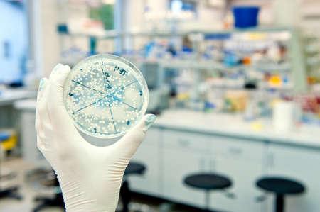 petri dish with agar and bacteria