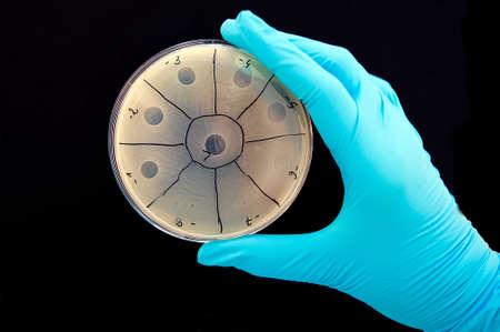 画像右側に小さな斑点がこの場所に感染するバクテリオファージによって引き起こされる細菌の換散の領域はバクテリオファージのプラクと呼ばれ