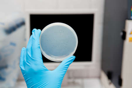 agar plate and bacteriophages in biotech lab Standard-Bild
