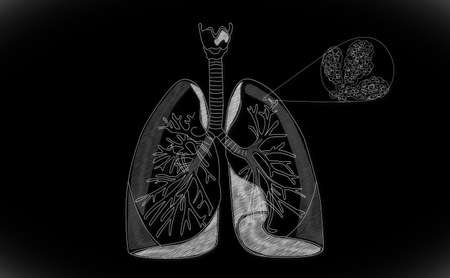 Human Lung structure Stock Photo - 15946360