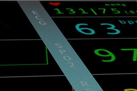 heart monitor: Heart Monitor ECG EKG
