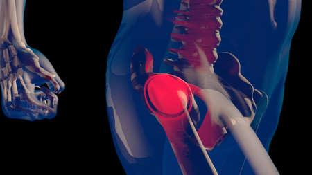 Muslo de la cabeza femoral y el dolor de cuello en el cuerpo humano Diseño transparente Ilustración 3D Foto de archivo