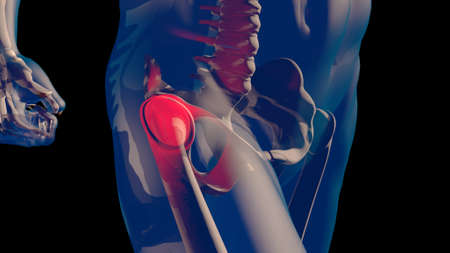 Thigh Femoral Head and Neck Pain in Human Body Transparent Design 3D Illustration Banque d'images
