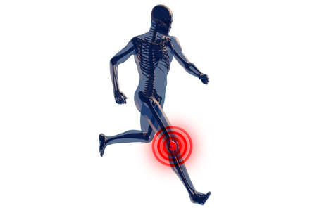 roentgen: Knee Pain in Human Body Transparent Design 3D Illustration