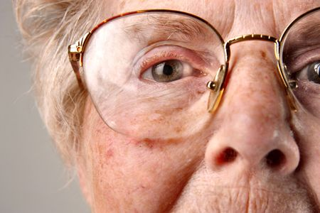 hair problem: closeup of senior woman eye Stock Photo