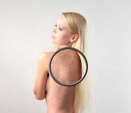 body human skin: beautiful woman with closeup of her dry skin Stock Photo
