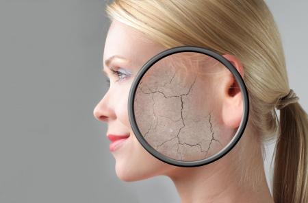 piel: Perfil de una hermosa mujer con portarretrato de su piel seca  Foto de archivo