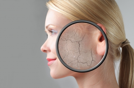 Profile of a beautiful woman with closeup of her dry skin photo