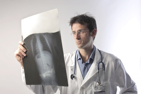 radiology: Doctor examining an x-ray slide