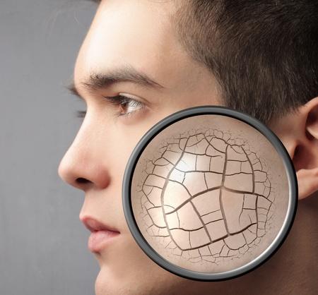 piel humana: Apuesto joven con el primer problema de su piel