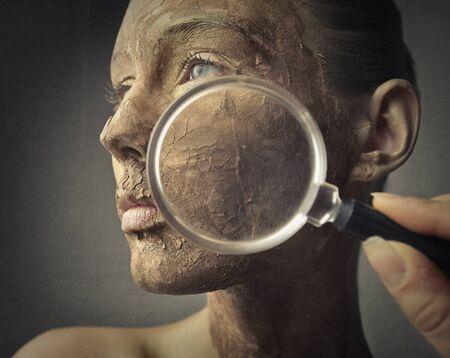 lupa: El cuidado de una piel dañada