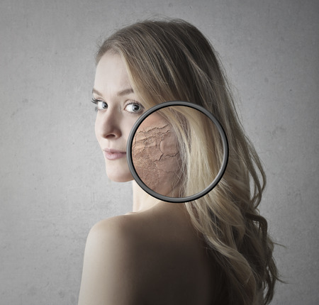 nude blonde girl: Woman with dry skin Stock Photo