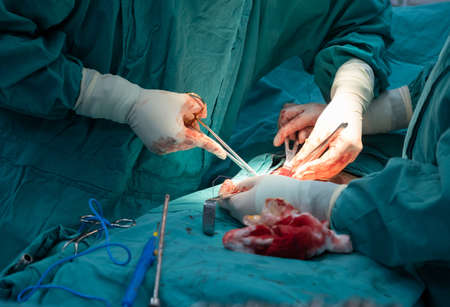 Cropped shot of medical team performing surgical operation in operating room. An operating room may be designed and equipped to provide care to patients.