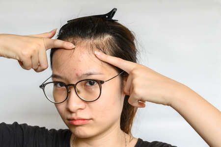 Portrait of woman trying to pointing problem of Acne and Scar from acne inflammation (Papule and Pustule) on her forehead. Conceptual of problems on woman skin.