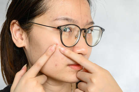 Portrait of Asian woman trying to squeeze acne on her face. Conceptual shot of problems with acne and scar on the female skin.