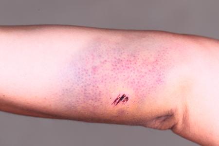 large hematoma on human arm, close up photo