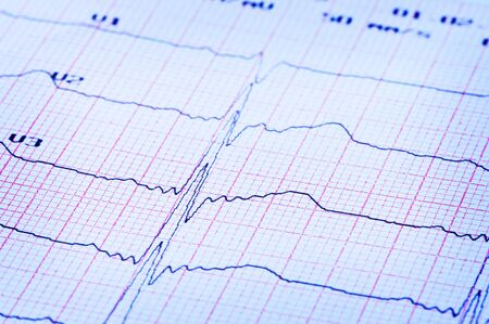 Cardiogram of heart on paper. Standard-Bild