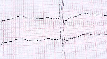 electrocardiograma: Cardiograma en el papel.