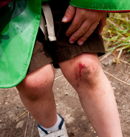 to cut: Skinned knee Stock Photo